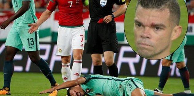 Pepe'den özür dilettiler